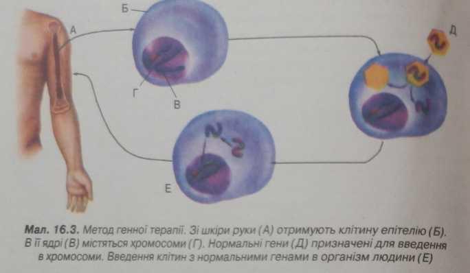 Метод генної терапії