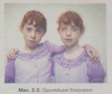 Однояйцеві близнюки